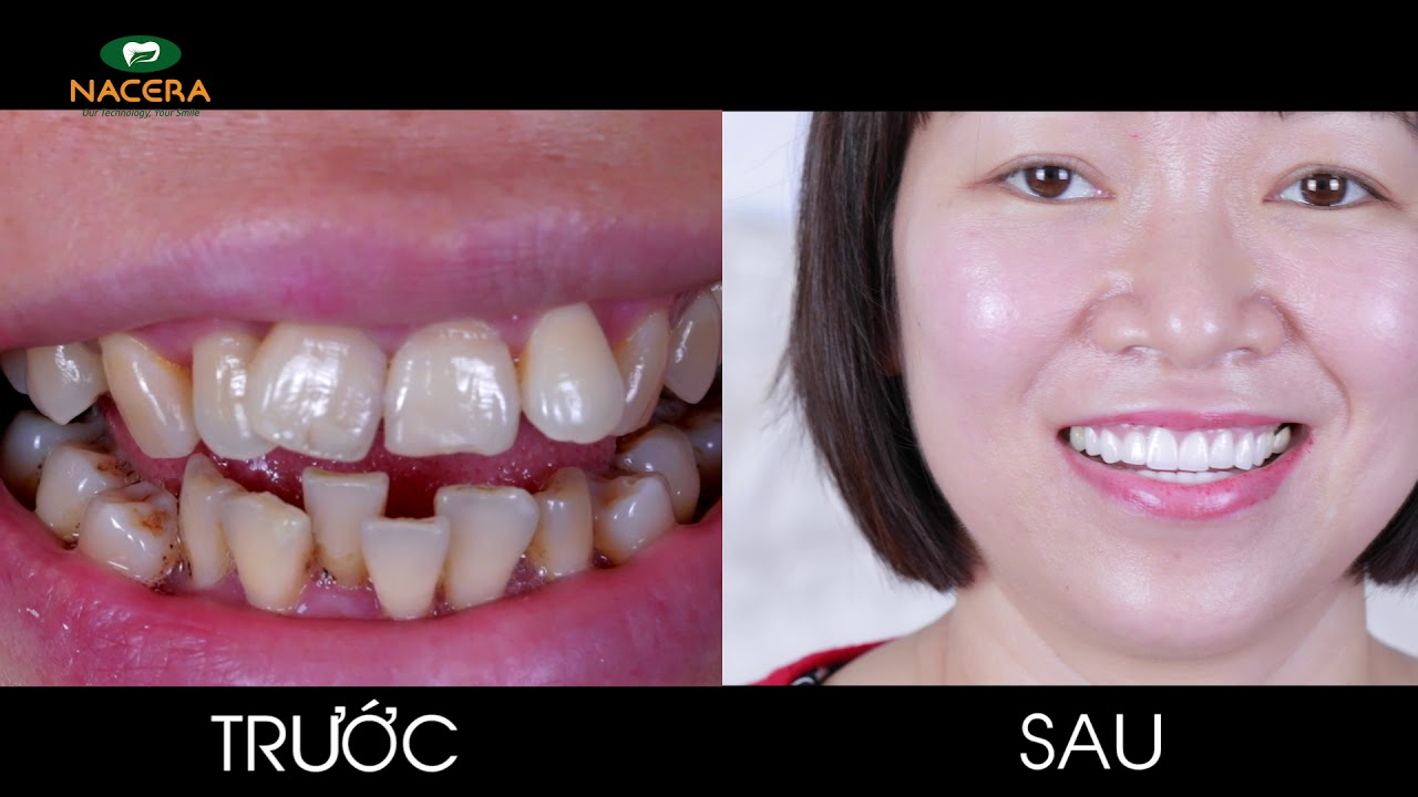 Hàm răng xấu theo chị 38 năm rồi và đến giờ đi làm răng là điều đúng đắn
