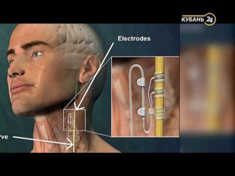 «Реанимация». Стимулятор при лечении эпилепсии