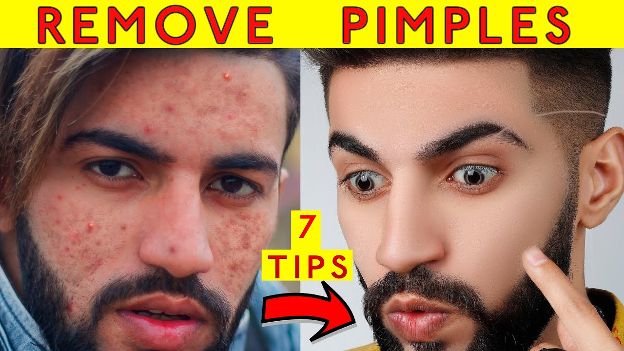 How to Remove Pimples & Acne Naturally at Home with 7 Daily Skin Care Routine Tips Hindi