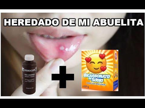 La quitar las ulceras caseros de remedios boca para