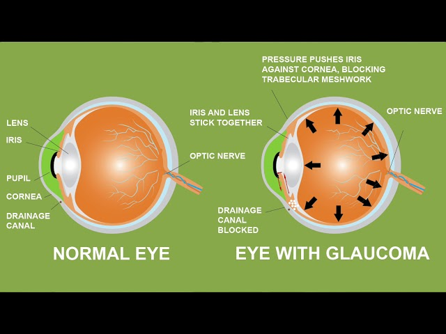 Eldercare Book Series Video 1: National Glaucoma Awareness Month