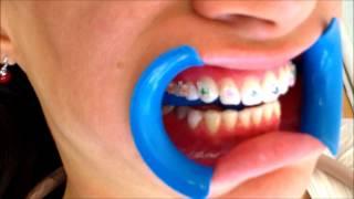 ¡ BRACKETS de ZAFIRO ! Lo más estético en Ortodoncia