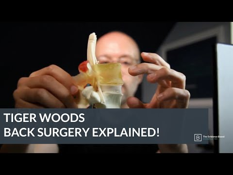 Tiger Woods Back Surgery Explained!