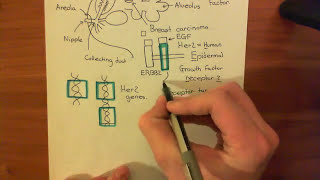 HER2 Amplification and Breast Cancer Part 1
