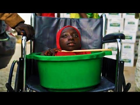 Teen With No Limbs Has Lived In Plastic Bucket Her Entire Life. This Is How She Survived...