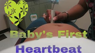 Baby's First Heartbeat | 15 Week Prenatal Appointment | Pregnancy Vlog #171 - Sharron's Take