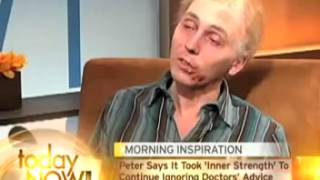 Man Dies On News YouTube