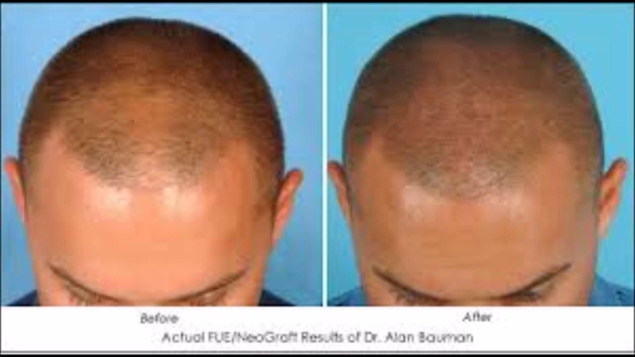 Just Natural Thin Hair Loss Treatment Reviews Hair Growth Oil For