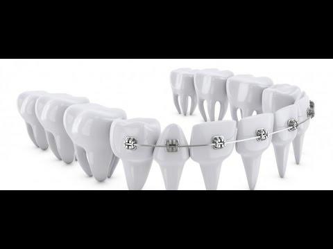 ما هو تقويم الاسنان ( المراحل والمدة والاضرار )