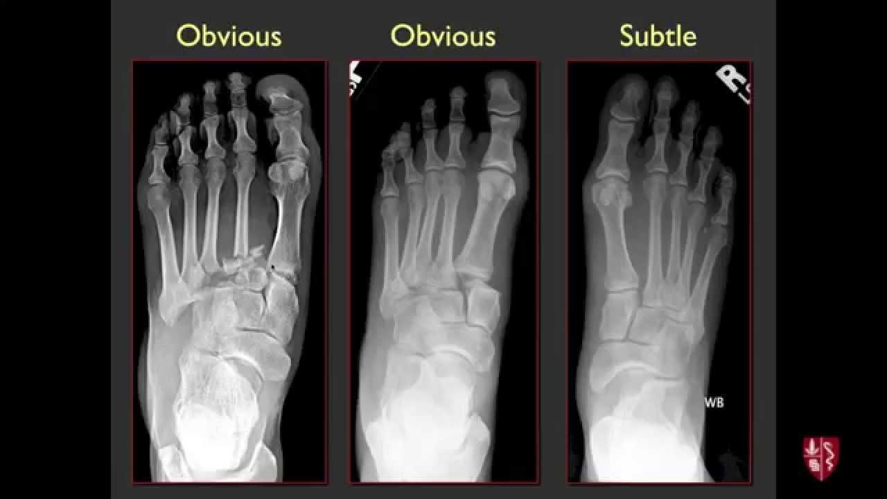 Tarsometatarsal Joints And Midfoot Lisfranc Sprains Youtube