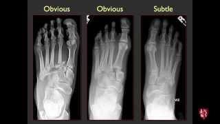 Tarsometatarsal Joints and Midfoot (Lisfranc) Sprains
