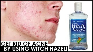HOW TO USE WITCH HAZEL FOR ACNE 😍 HOW TO GET RID OF ACNE