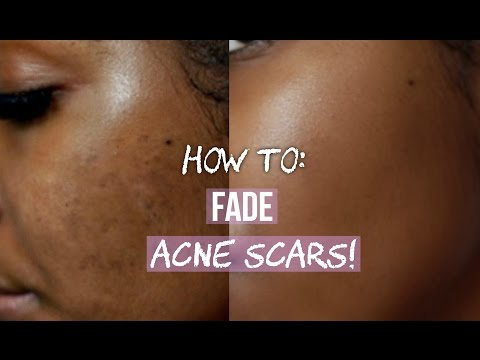 hqdefault - Have Acne Scars My Face