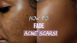 hqdefault - How To Get Rid Of Acne Scars All Over Face