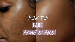 hqdefault - Skin Care Treatments Acne Scars