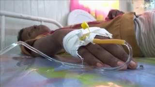 انقلابيو اليمن يمنعون وصول الغذاء والدواء للأطفال المرضى