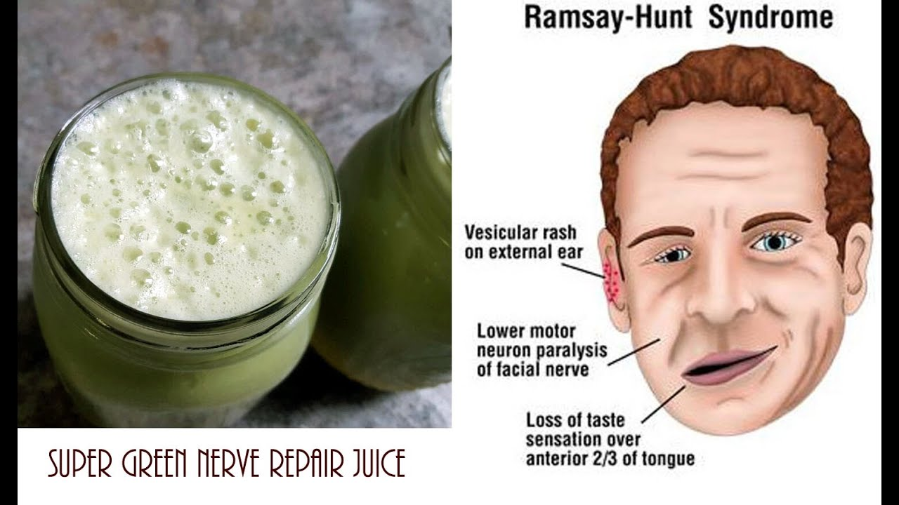 GREEN NERVE REPAIR JUICE RECIPE~ Ramsay hunt syndrome and Bell's ...