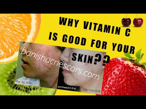 WHAT IS VITAMIN C AND HOW DOES IT WORK FOR YOUR SKIN? DML style