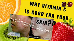 hqdefault - Does Vit C Help Acne