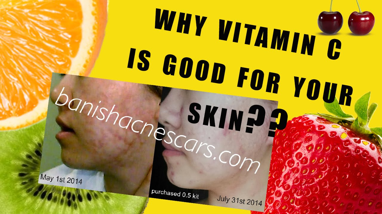 What vitamins are needed for the skin of the face? 84