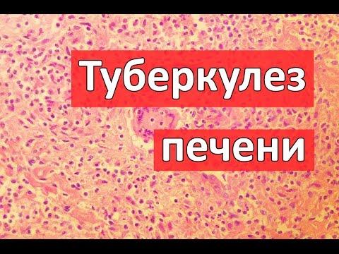 Нефропатия: симптомы, признаки, виды и лечение