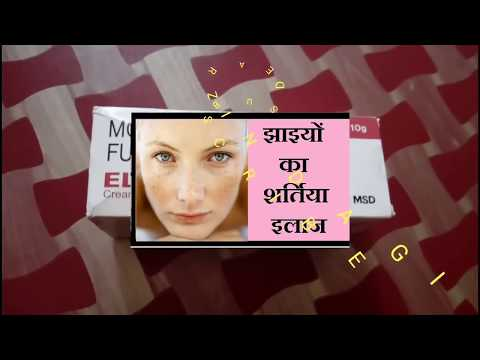 चेहरे की झाई || remove pigmentation || remedy of melasma || elocon cream || Freckles face || Jhaiya