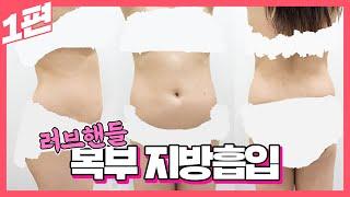 뱃살 러브핸들 지방흡입 1편 빼기 힘든 복부 부위 한 …