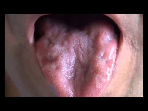 Tongue Fasciculations