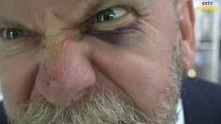 Gavin McInnes explains weekend fistfight & resulting black eye