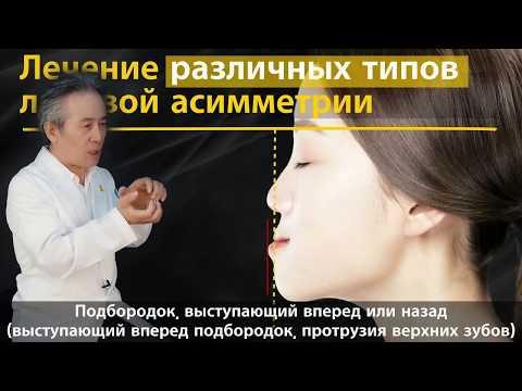 Для чего нужно исправлять лицевую асимметрию?