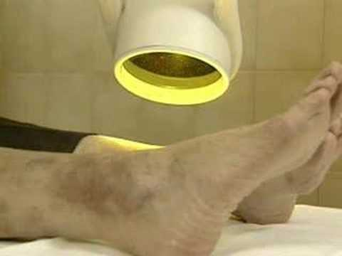 Healing Quest Bioptron Polarized Light Therapy Youtube