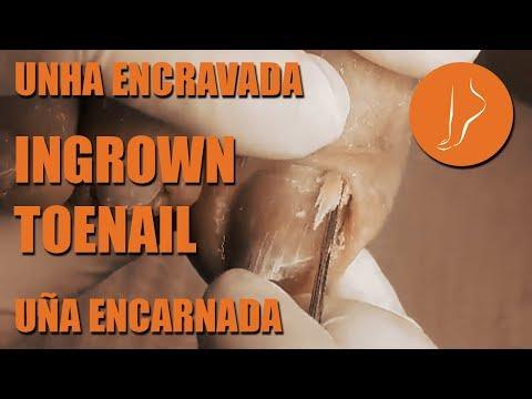 Uña Encarnada - Unha Encravada - Ingrown Toenail [Podología Integral]