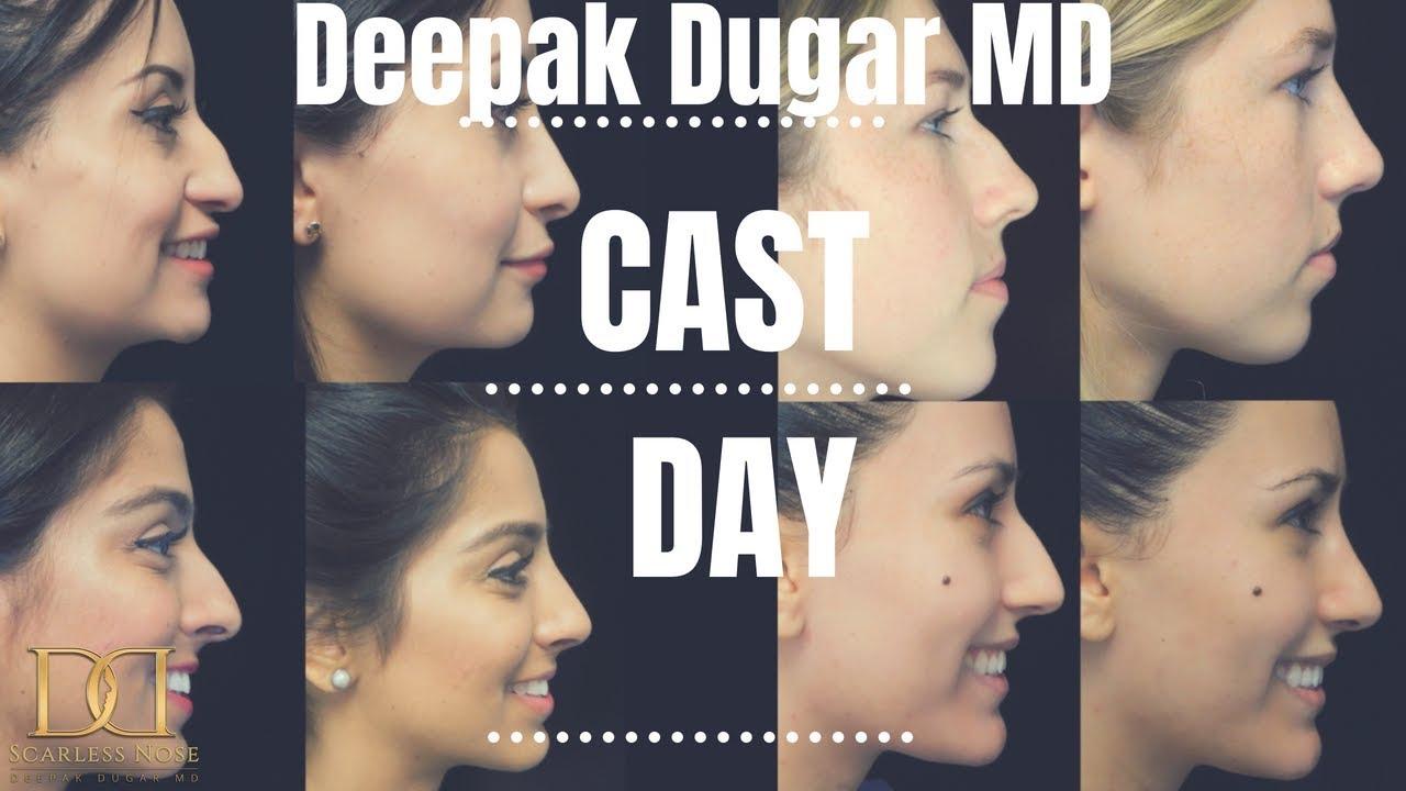 Deepak Raj Dugar, MD: Plastic Surgeon Beverly Hills, CA