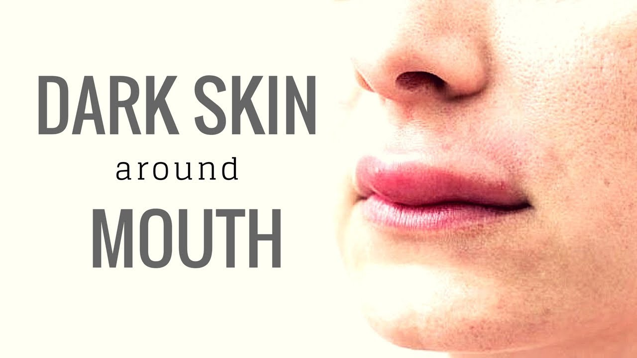 how to get rid of yellow skin around mouth