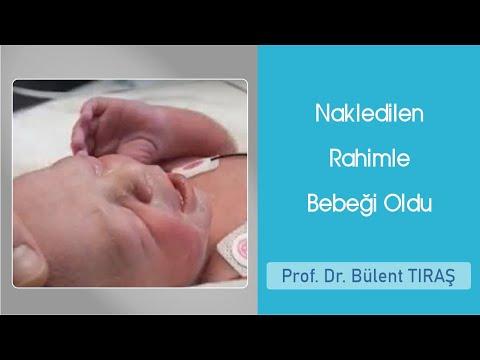 Nakledilen Rahimle Bebeği Oldu - Prof Dr Bülent Tıraş
