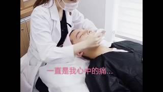 Kev Yiu真實體驗FGF治療