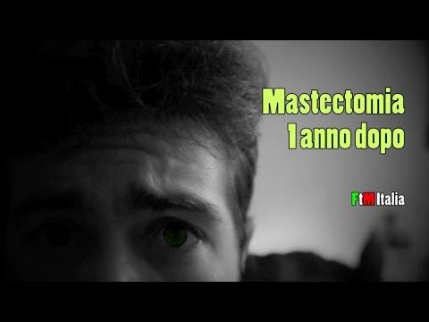 FtM Italia: Risultati 1 anno post Mastectomia