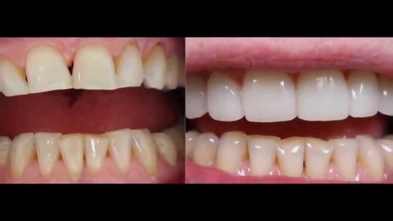 facette dentaire lyon