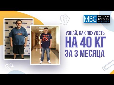 Минус 40 кг за 3 месяца | Отзыв после резекции желудка