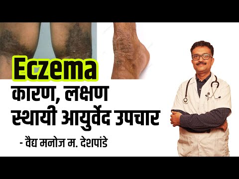 Effective Ayurvedic treatment for eczema | इसब वरील प्रभावी आयुर्वेदिक उपचार – वैद्य मनोज देशपांडे