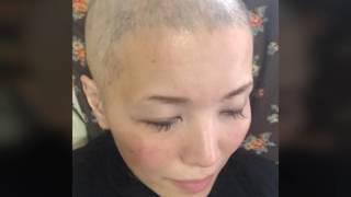 全頭脱毛症円形脱毛症完治の記録VOL.②┈ひまし油とこころの変化編 thumbnail