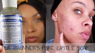 I TRIED DR BRONNER'S PURE CASTILE SOAP FOR ONE WEEK - ACNE PRONE SKIN