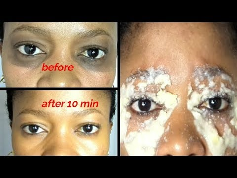 In 10 Minutes Remove Dark Under-Eye Get Rid Of Dark ...