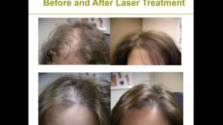 HLCC Laser Hairloss Treatment   About Low Level Laser Therapy