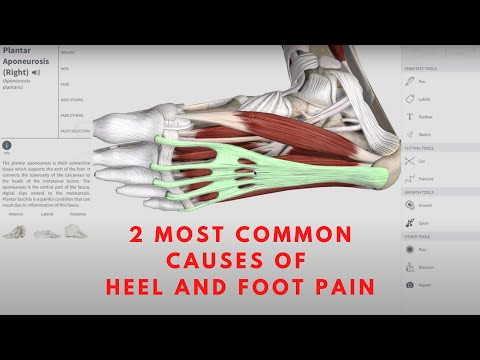 2 MOST COMMON CAUSES OF HEEL AND FOOT PAIN | Orthopedic & Balance Therapy Specialists | OBTS