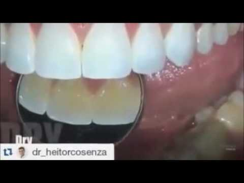 Dental Makeup   Dental Transformation   Dental Veneers