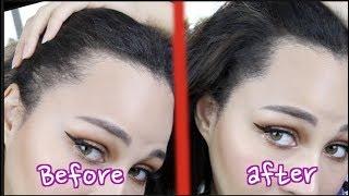 Fix Your Thin Hairline | Korean Hair Cushion
