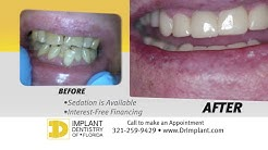 Dental Implants Melbourne Fl - Viera - Palm Bay - Rockledge - Satellite Beach - Indialantic