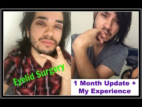 1 Month Update + My Cosmetic Surgery Experience (Double Eyelids)