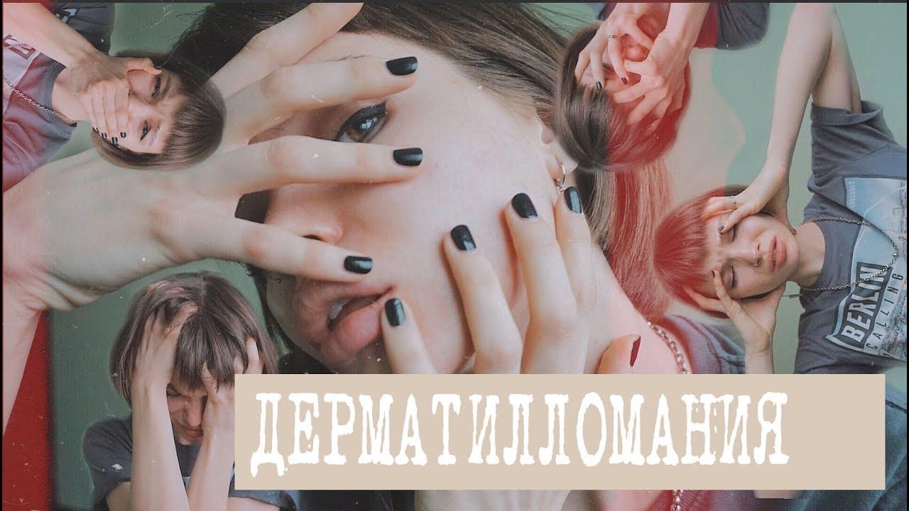 Что такое дерматилломания?
